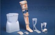 Ортопедические пластики для протезов