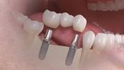 Лечение ,  протезирование и имплантация зубов в Полтаве на выгодных усл